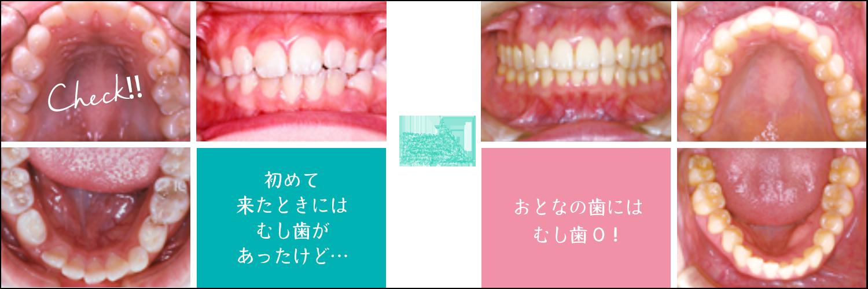 初めて来たときにはむし歯があったけど…おとなの歯にはむし歯0!